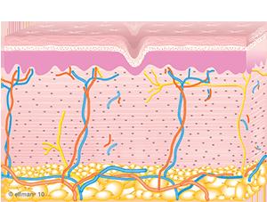 Collagen Remodeling