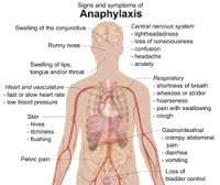 Anaphyaxis